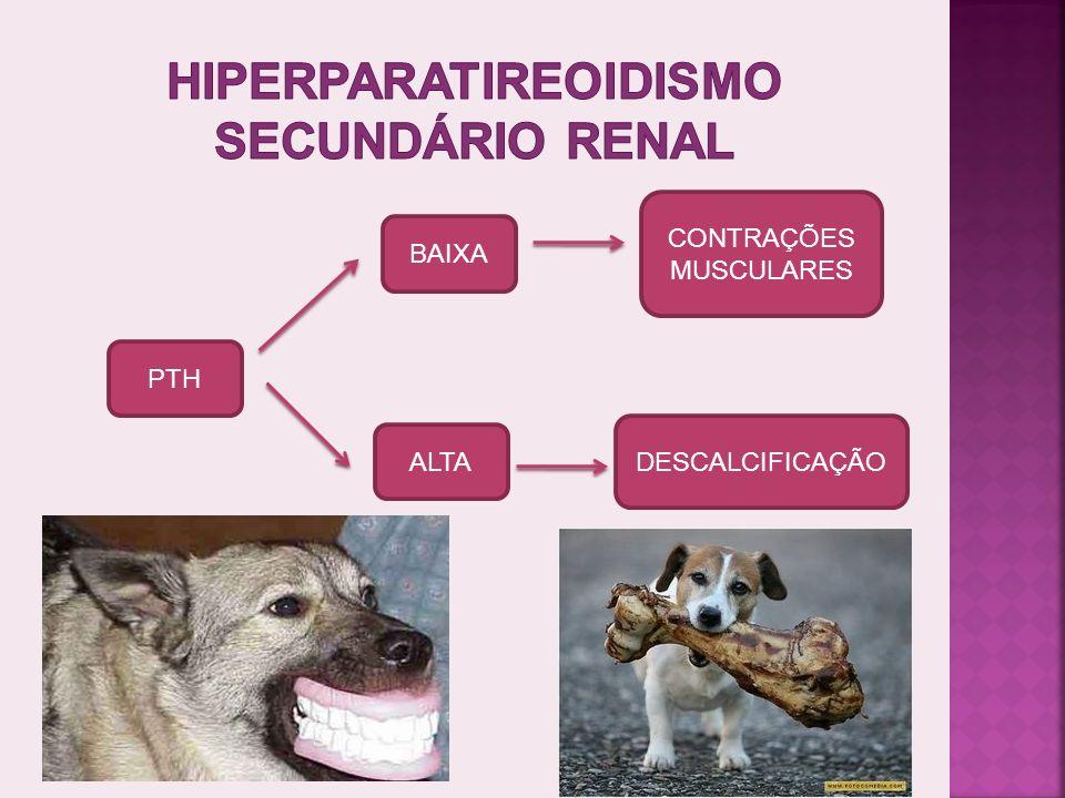 Hiperparatireoidismo secundário renal
