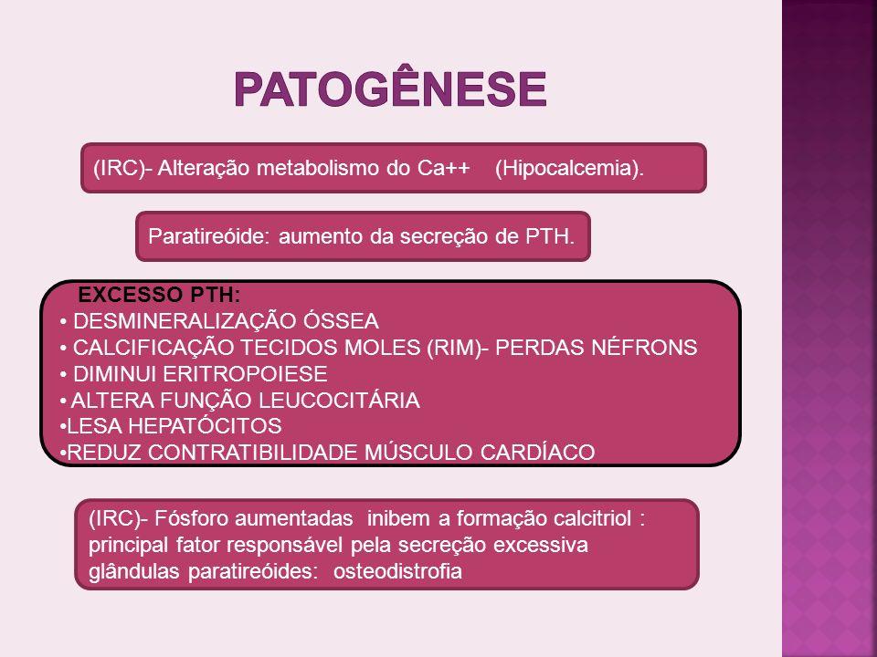 Patogênese (IRC)- Alteração metabolismo do Ca++ (Hipocalcemia).