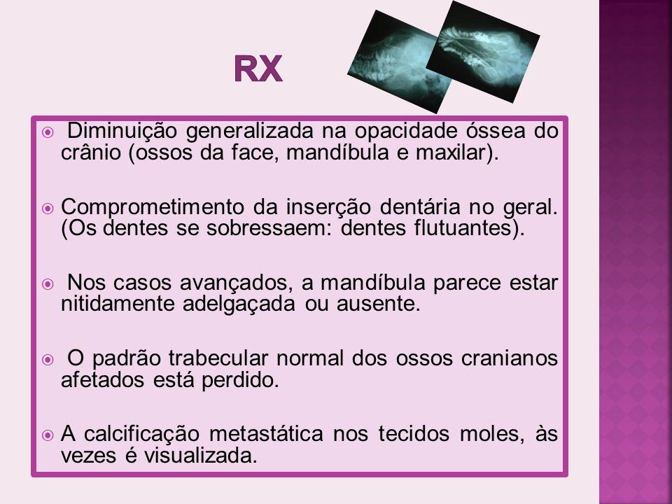rx Diminuição generalizada na opacidade óssea do crânio (ossos da face, mandíbula e maxilar).
