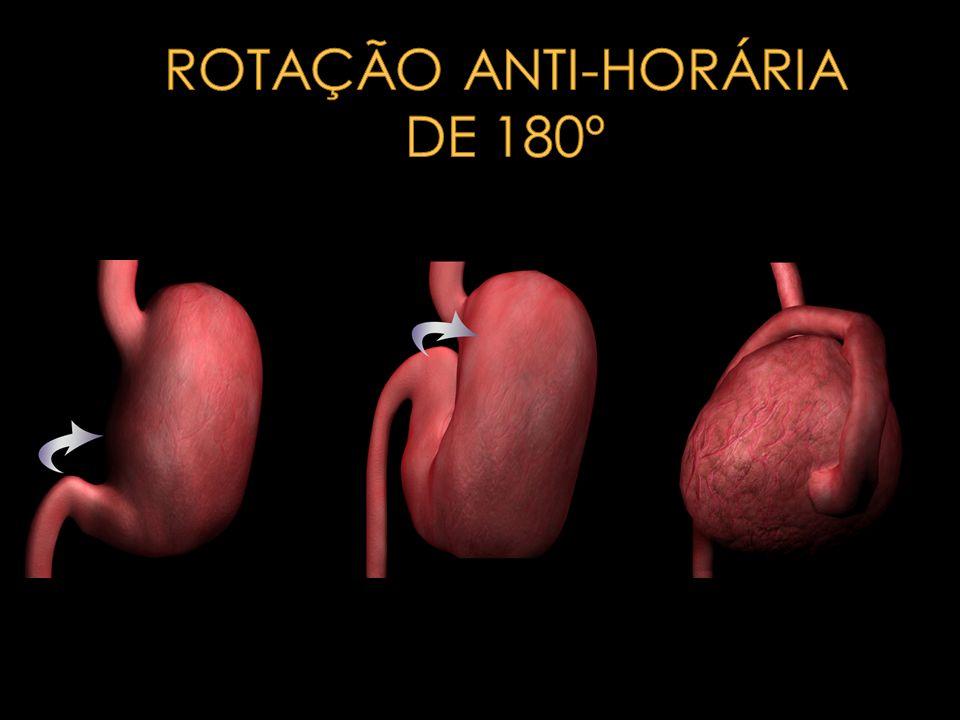 ROTAÇÃO ANTI-HORÁRIA DE 180º