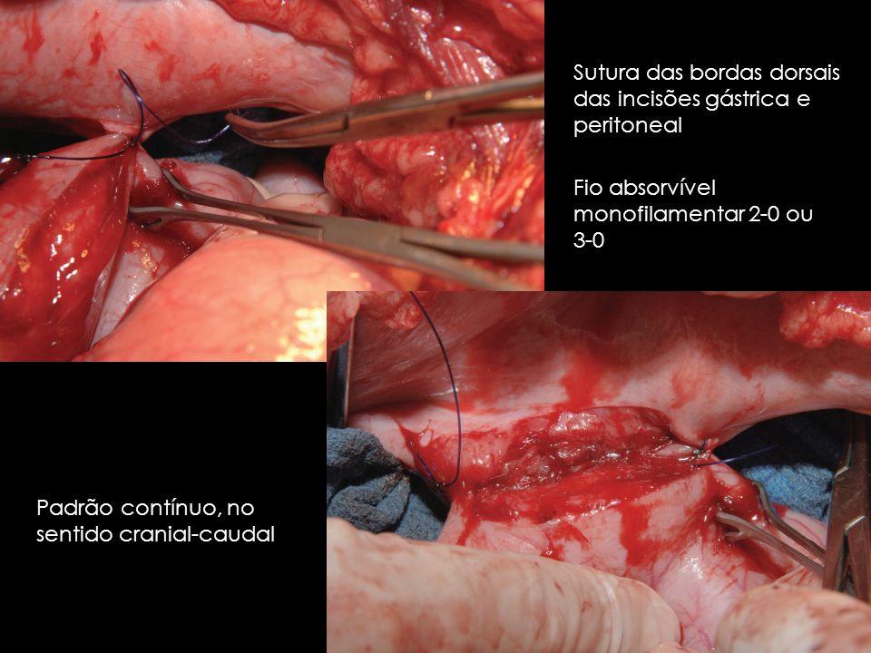 Sutura das bordas dorsais das incisões gástrica e peritoneal