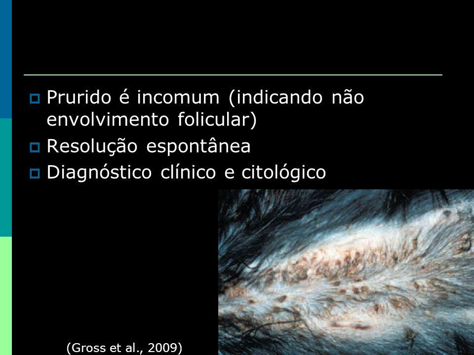 Prurido é incomum (indicando não envolvimento folicular)