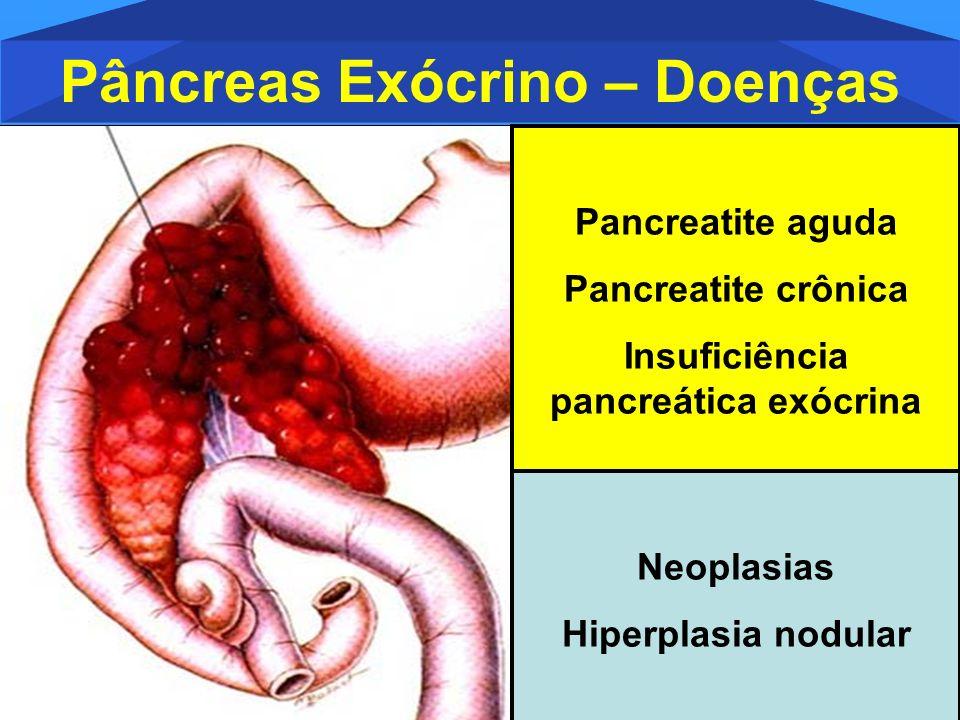 Pâncreas Exócrino – Doenças Insuficiência pancreática exócrina
