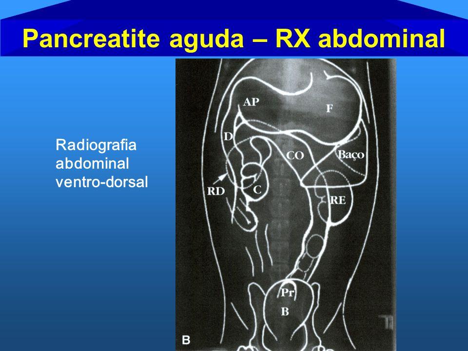 Pancreatite aguda – RX abdominal