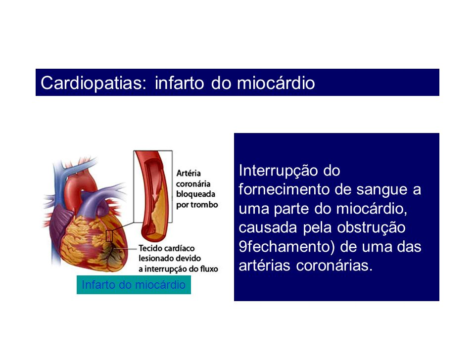 Cardiopatias: infarto do miocárdio