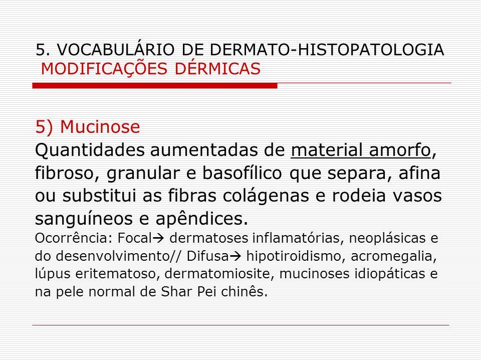 5. VOCABULÁRIO DE DERMATO-HISTOPATOLOGIA MODIFICAÇÕES DÉRMICAS