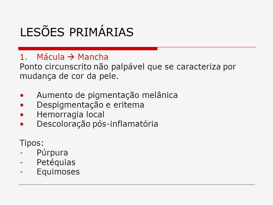 LESÕES PRIMÁRIAS Mácula  Mancha
