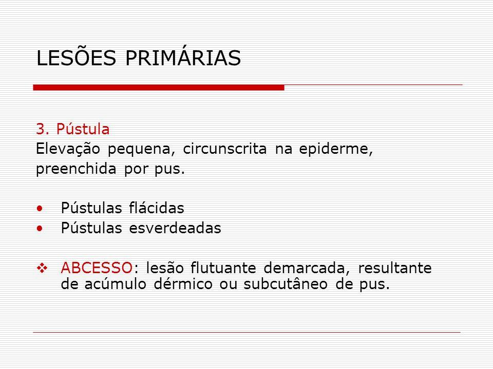 LESÕES PRIMÁRIAS 3. Pústula