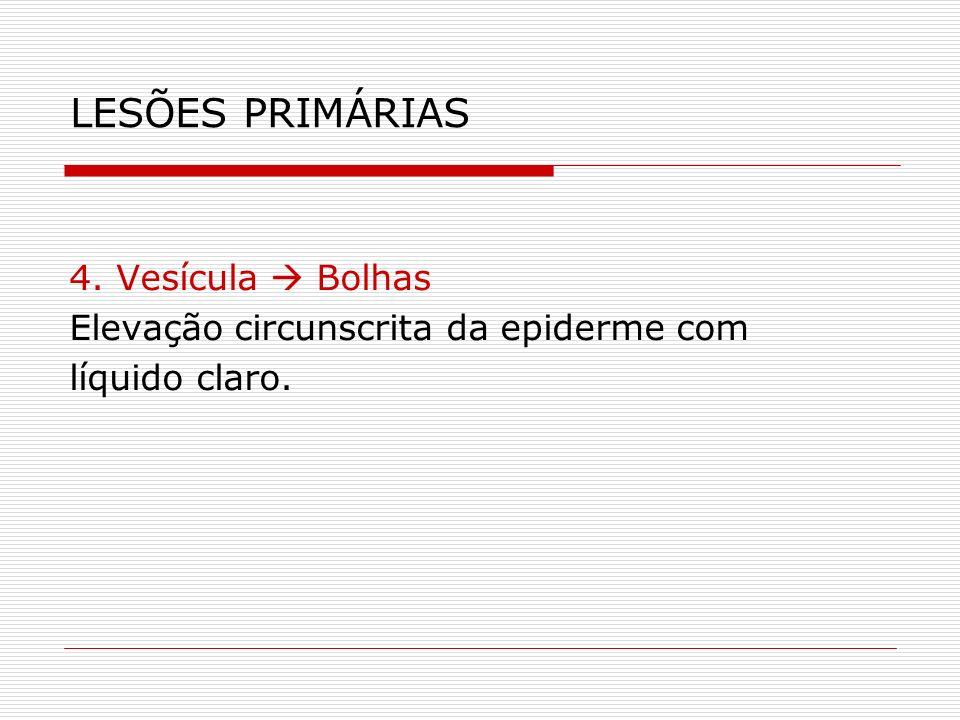 LESÕES PRIMÁRIAS 4. Vesícula  Bolhas
