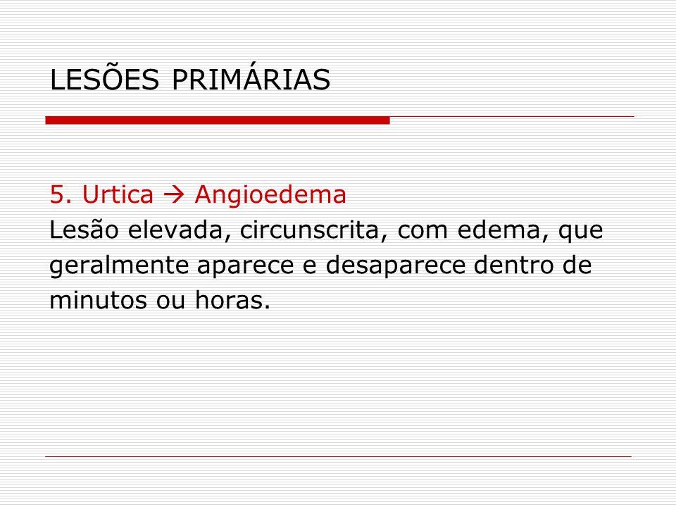 LESÕES PRIMÁRIAS 5. Urtica  Angioedema