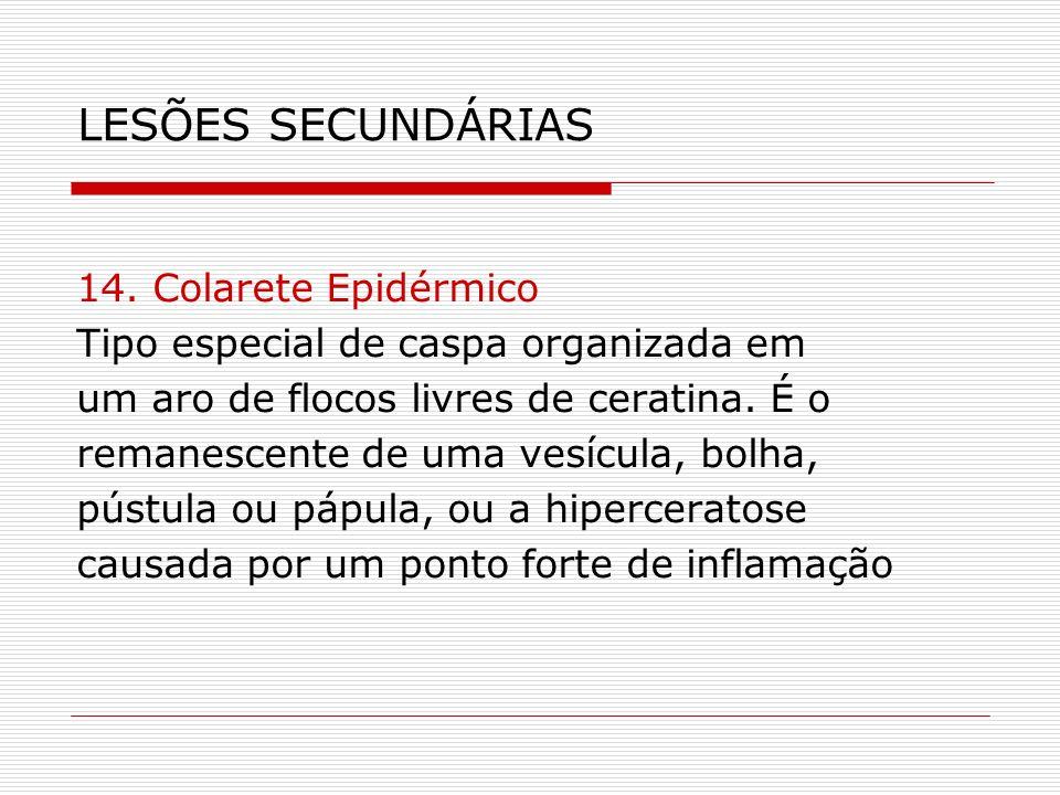 LESÕES SECUNDÁRIAS 14. Colarete Epidérmico