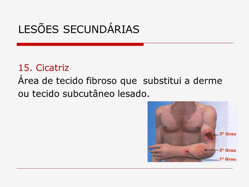 LESÕES SECUNDÁRIAS 15. Cicatriz