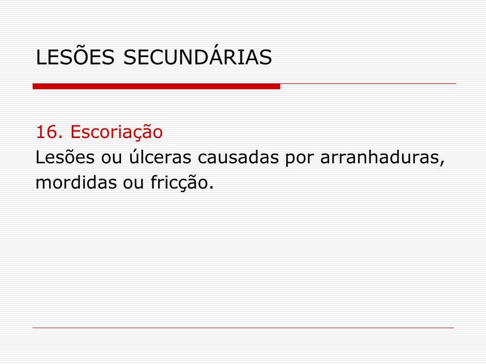 LESÕES SECUNDÁRIAS 16. Escoriação