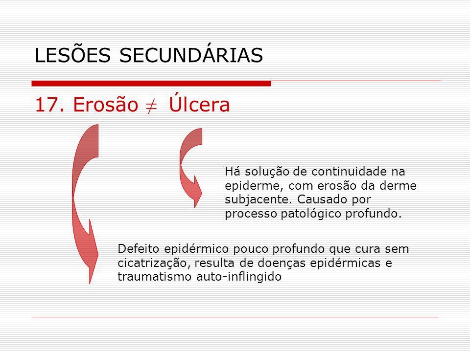 LESÕES SECUNDÁRIAS 17. Erosão ≠ Úlcera
