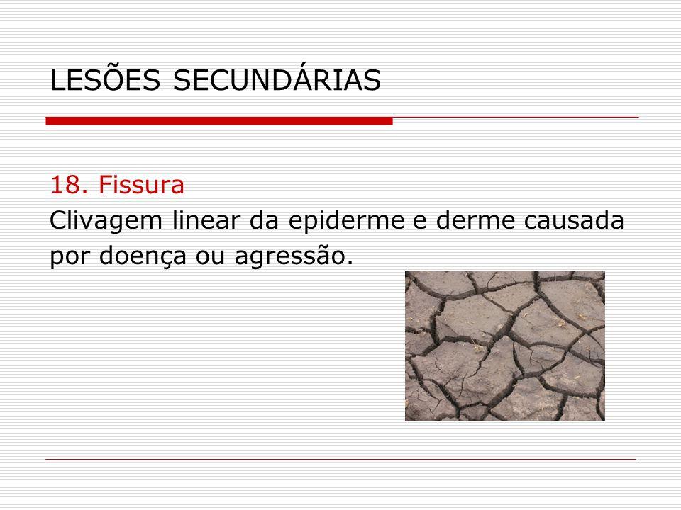 LESÕES SECUNDÁRIAS 18. Fissura