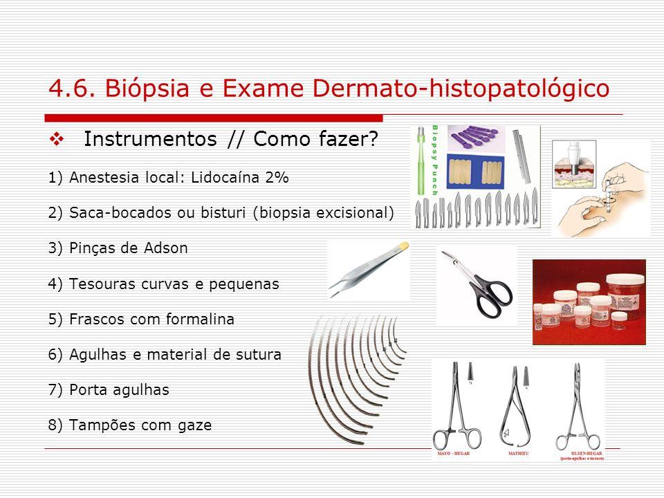 4.6. Biópsia e Exame Dermato-histopatológico