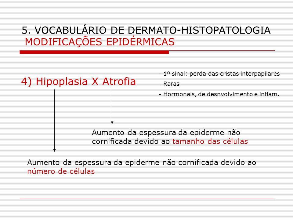 5. VOCABULÁRIO DE DERMATO-HISTOPATOLOGIA MODIFICAÇÕES EPIDÉRMICAS