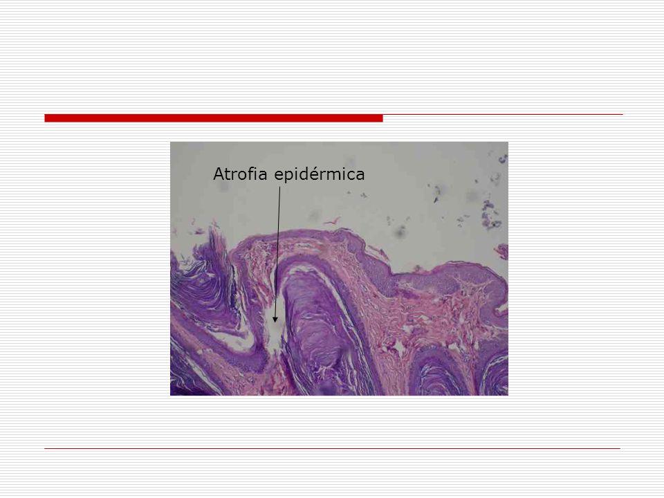 Atrofia epidérmica