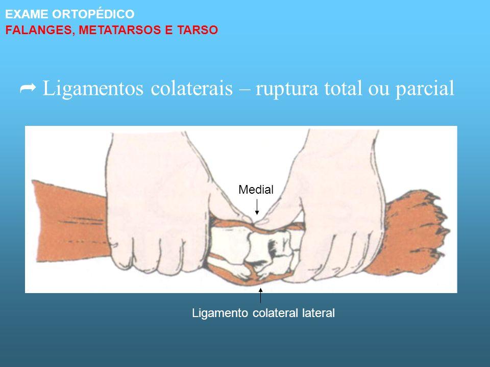 Ligamentos colaterais – ruptura total ou parcial