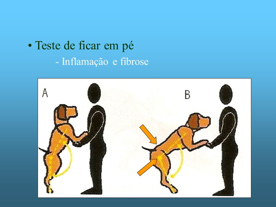 Teste de ficar em pé - Inflamação e fibrose