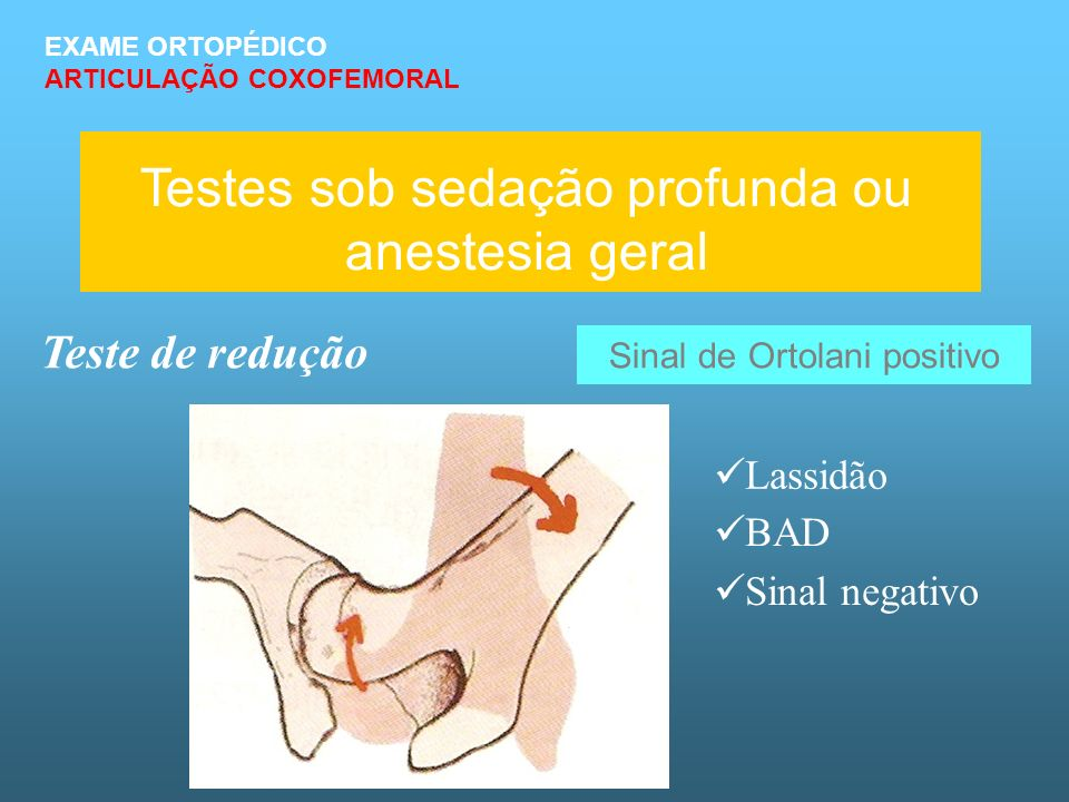 Testes sob sedação profunda ou anestesia geral