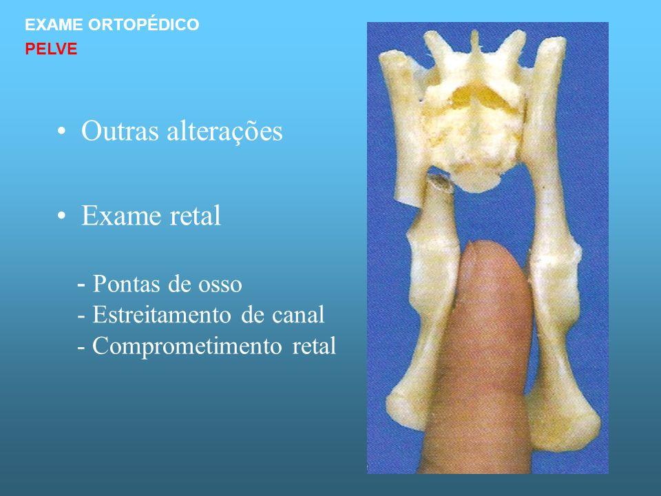Outras alterações Exame retal - Pontas de osso
