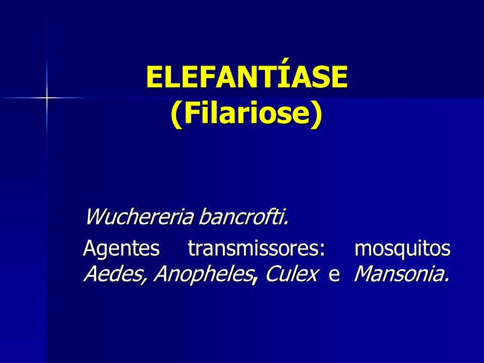 ELEFANTÍASE (Filariose)