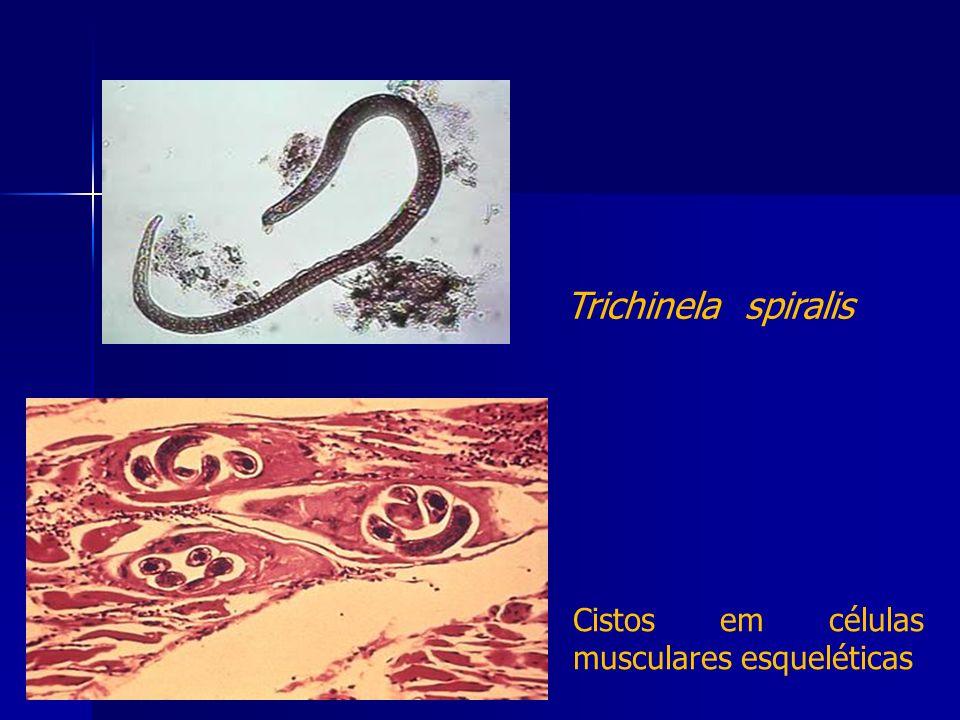 Trichinela spiralis Cistos em células musculares esqueléticas