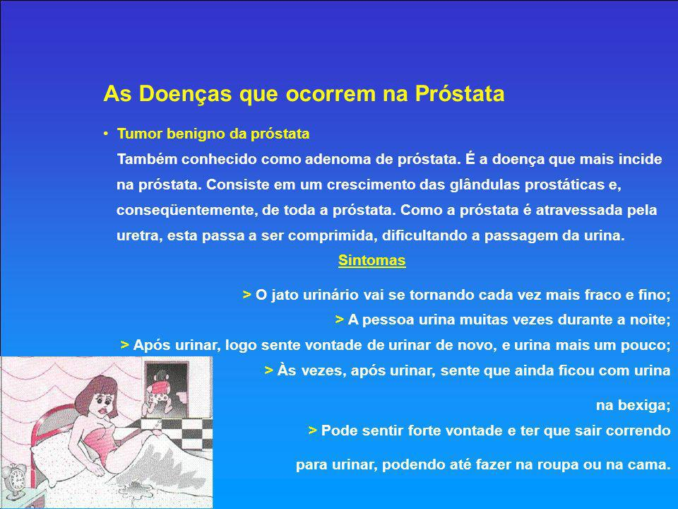 As Doenças que ocorrem na Próstata