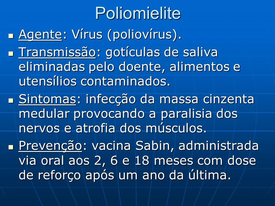 Poliomielite Agente: Vírus (poliovírus).