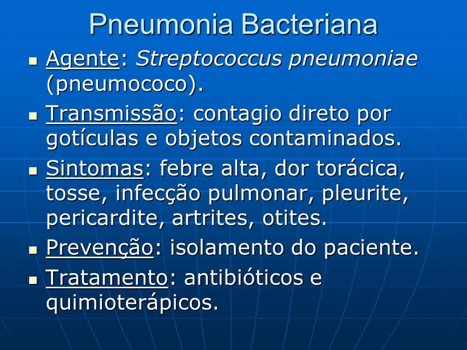 Pneumonia Bacteriana Agente: Streptococcus pneumoniae (pneumococo).