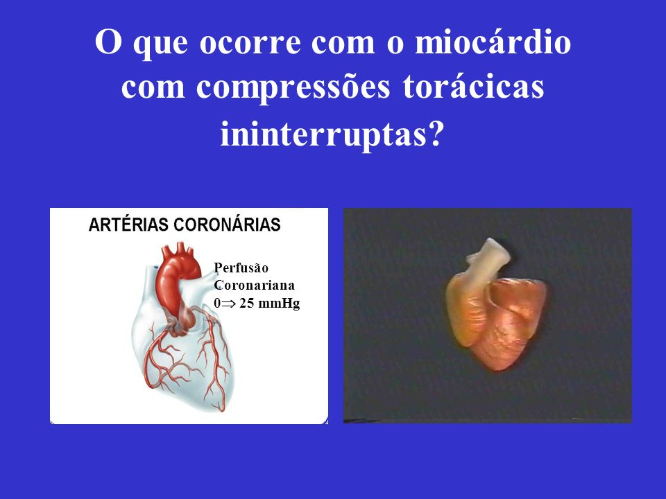 O que ocorre com o miocárdio com compressões torácicas ininterruptas