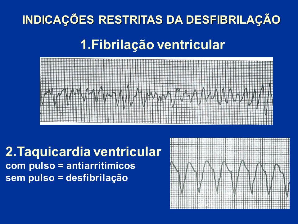 1.Fibrilação ventricular