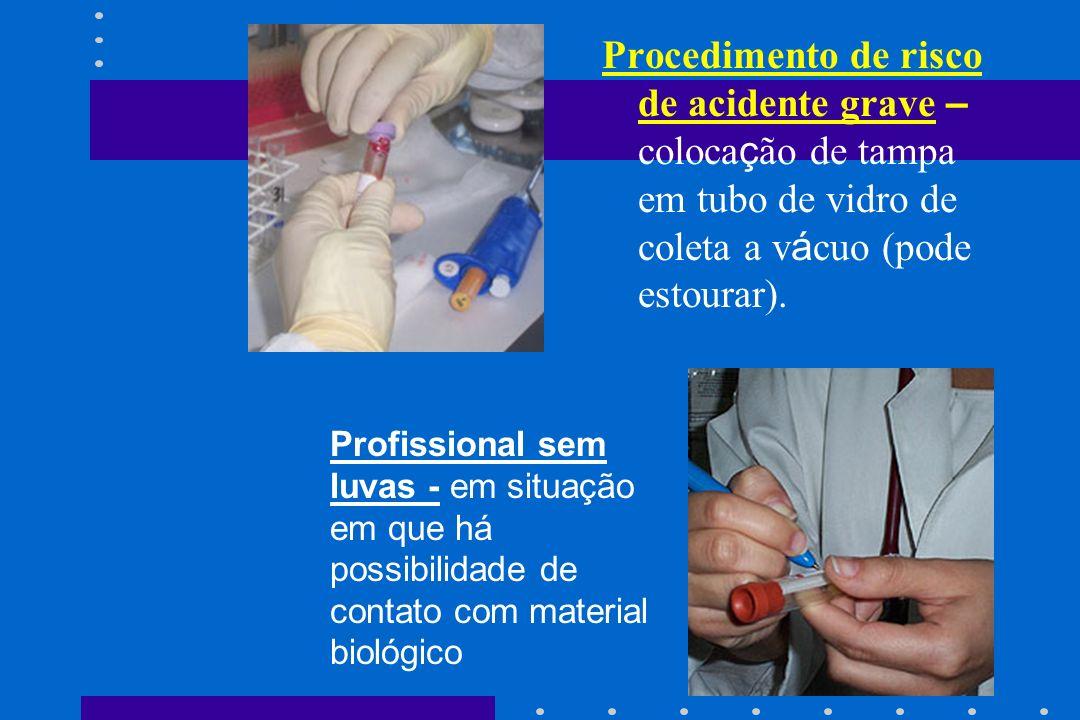 Procedimento de risco de acidente grave – colocação de tampa em tubo de vidro de coleta a vácuo (pode estourar).