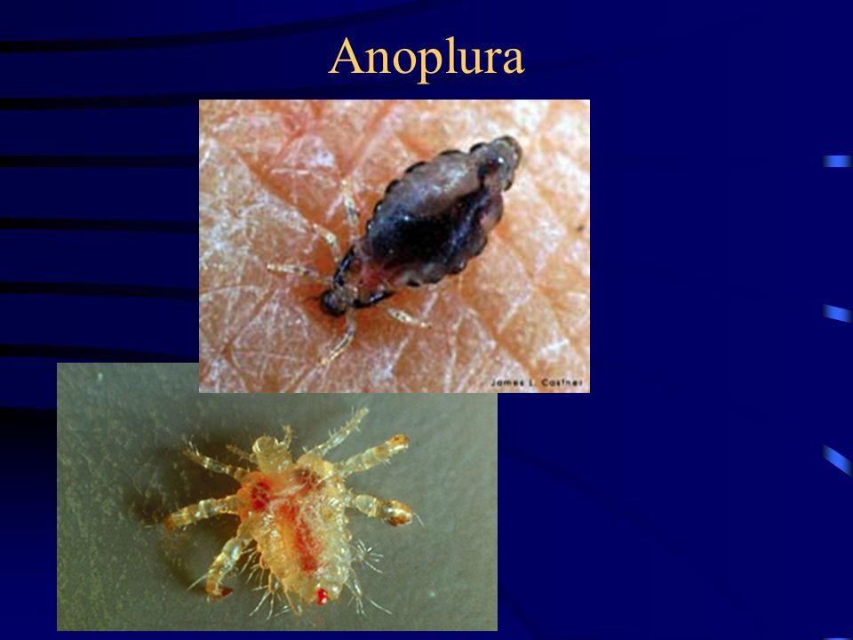 Anoplura