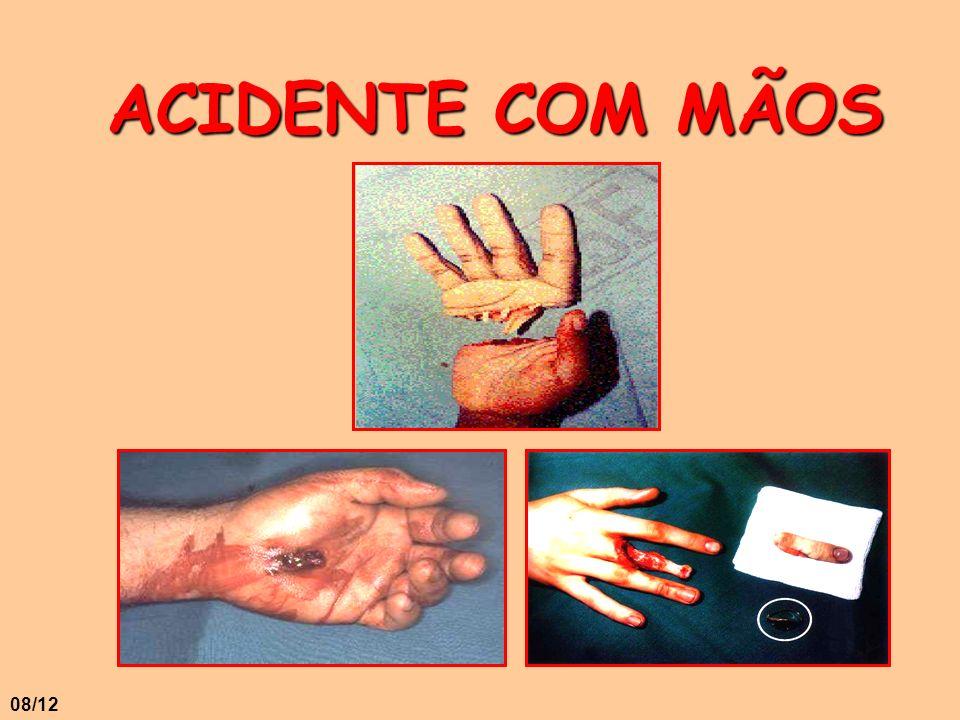 ACIDENTE COM MÃOS 08/12