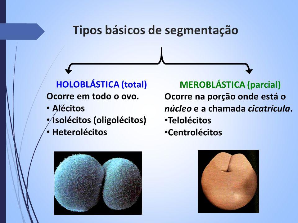 Tipos básicos de segmentação