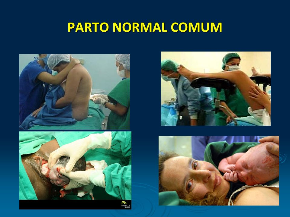PARTO NORMAL COMUM