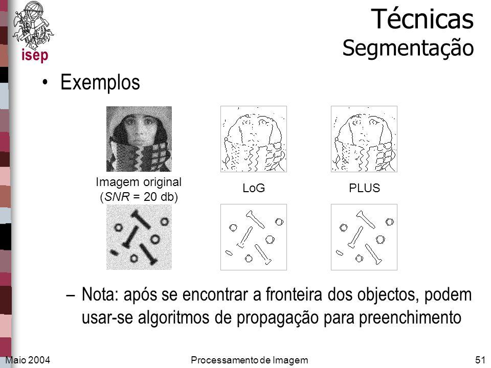 Técnicas Segmentação Exemplos