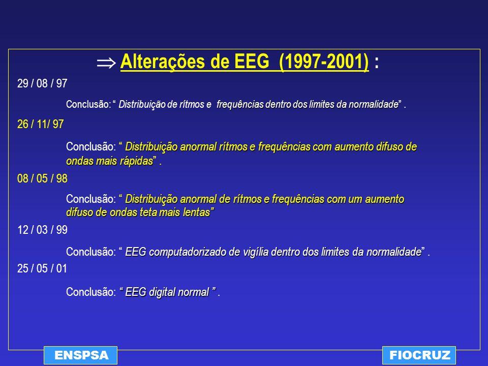  Alterações de EEG (1997-2001) :