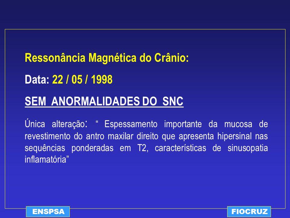 Ressonância Magnética do Crânio: Data: 22 / 05 / 1998