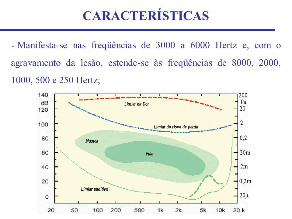 1313 CARACTERÍSTICAS.