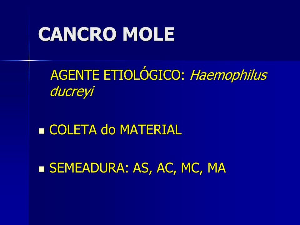 CANCRO MOLE AGENTE ETIOLÓGICO: Haemophilus ducreyi COLETA do MATERIAL