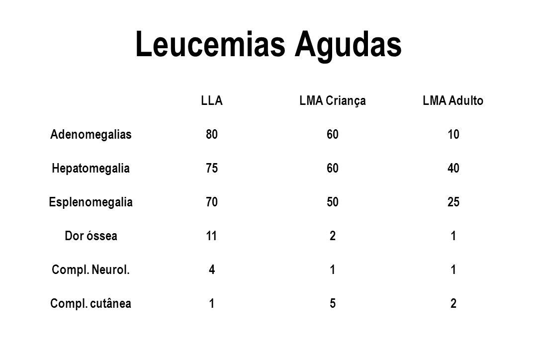 Leucemias Agudas LLA LMA Criança LMA Adulto Adenomegalias 80 60 10