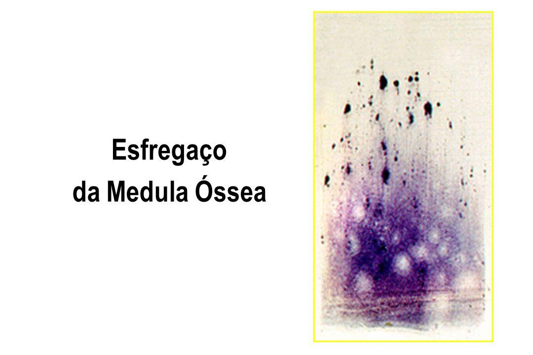Esfregaço da Medula Óssea