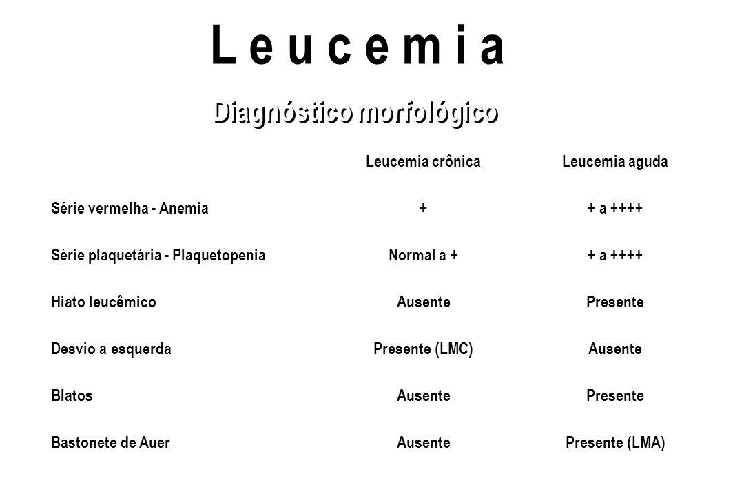 L e u c e m i a Diagnóstico morfológico Leucemia crônica