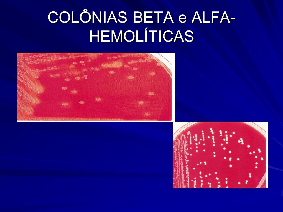 COLÔNIAS BETA e ALFA-HEMOLÍTICAS