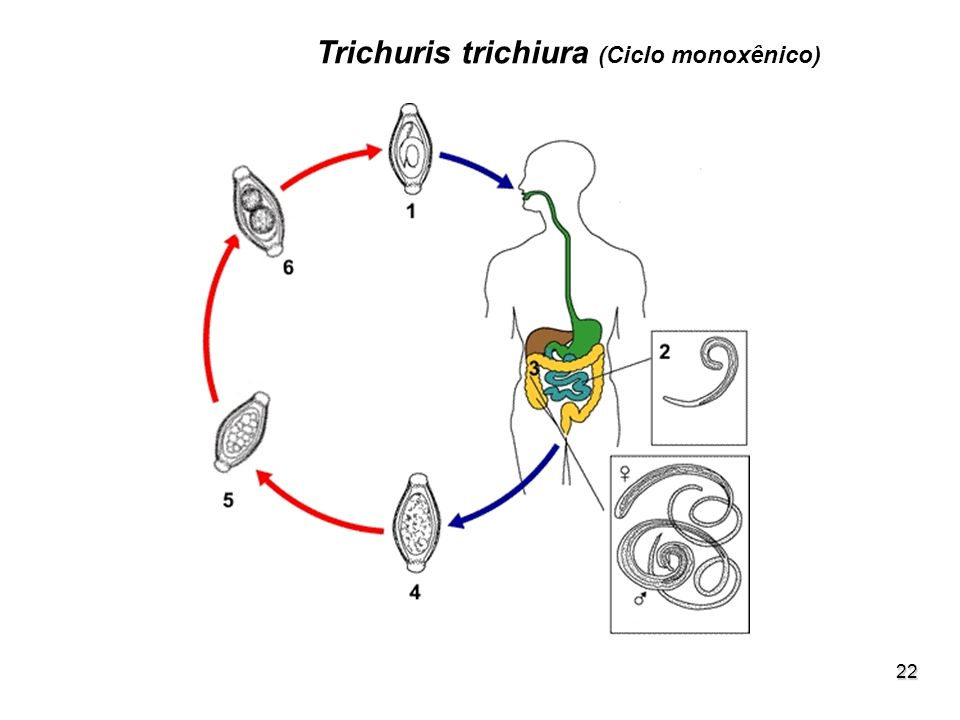 Trichuris trichiura (Ciclo monoxênico)