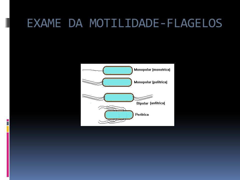 EXAME DA MOTILIDADE-FLAGELOS