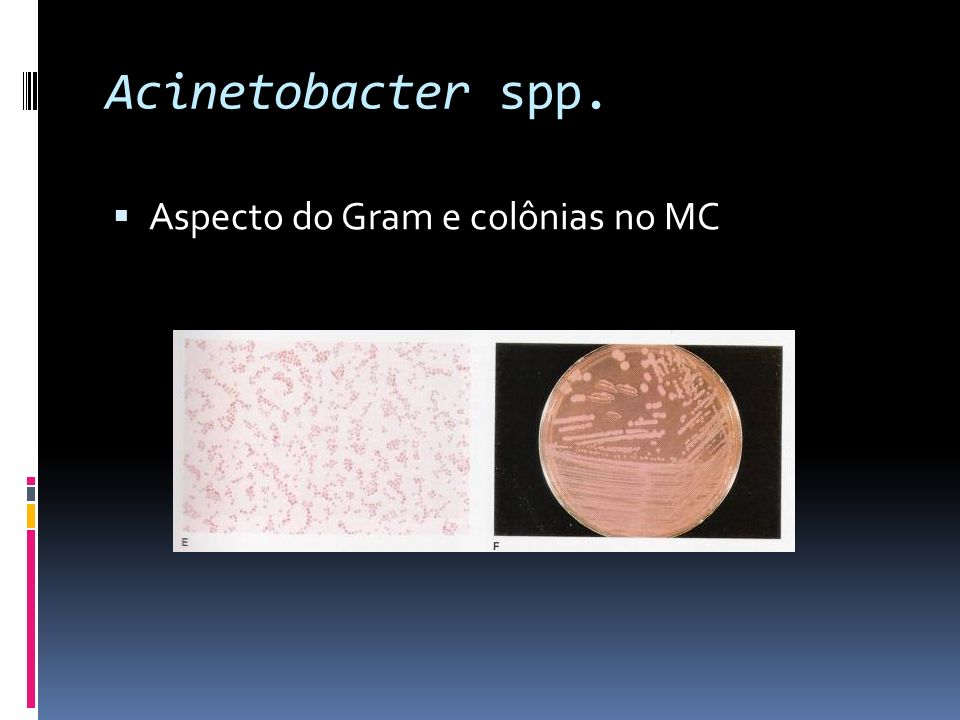 Acinetobacter spp. Aspecto do Gram e colônias no MC